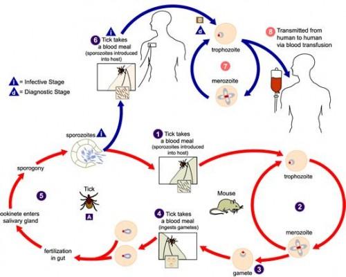 babesiosis disease